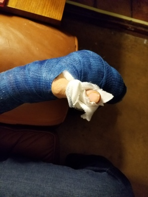 Cast removal 1