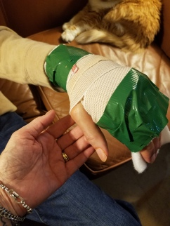 Ducttaped splint